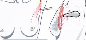 انواع برش برای پروتز سینه