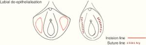 انواع روش لابیاپلاستی - رازجراحی
