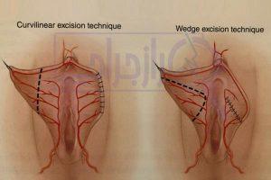 انواع روش های لابیاپلاستی - رازجراحی
