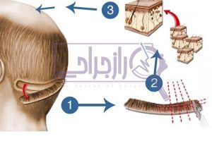 انواع روش کاشت مو - راز جراحی