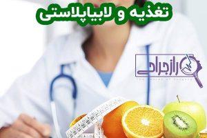 تغذیه و لابیاپلاستی
