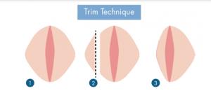 تکنیک پیراستن - لابیاپلاستی