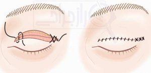 جراحی پلک بالا - راز جراحی