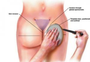 روند پروتز باسن - راز جراحی