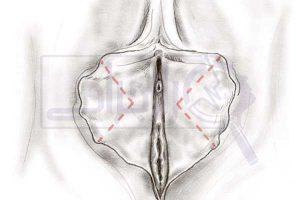 لابیاپلاستی - رازجراحی