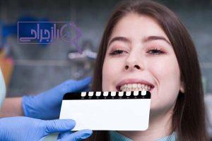 لمینت دندان راز جراحی