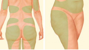 لیپوماتیک شکم و ران راز جراحی