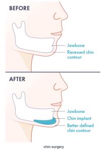 ژینوپلاستی - راز جراحی