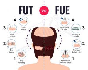 fue-fut -راز جراحی