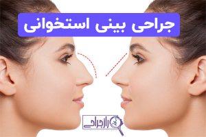 جراحی بینی استخوانی راز جراحی
