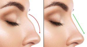 جراح بینی استخوانی راز جراحی