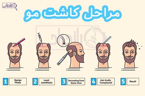 مراحل کاشت مو - راز جراحی