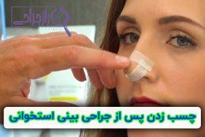 چسب زدن پس از جراحی بینی استخوانی