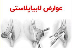 عوارض لابیاپلاستی راز جراحی