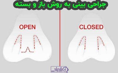جراحی بینی به روش باز و بسته