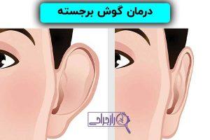 درمان گوش برجسته در راز جراحی