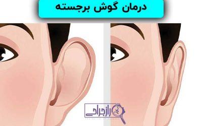 درمان گوش برجسته